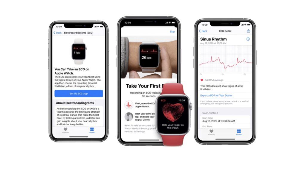 Pengguna Apple Watch di Malaysia bakal menerima sokongan bacaan ECG melalui kemaskini WatchOS 7.5 8